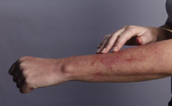 Ի՞նչ հիվանդության ախտանիշ է, երբ ձեռքերին և ոտքերին պզուկներ են հայտնվում