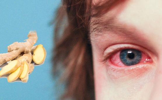 Սեզոնային ալերգիայից ազատվելու համար լավագույն բնական դեղամիջոցը․ Որը գործում է