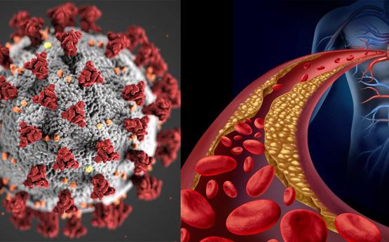 Կորոնավիրուսից շատերը մահանում են արյունը ջրիկացնող դեղերի պատճառով, սկզբում քթից արյուն է գալիս, հետո ․․․ Ամերիկացի գիտնականի բացահայտումը