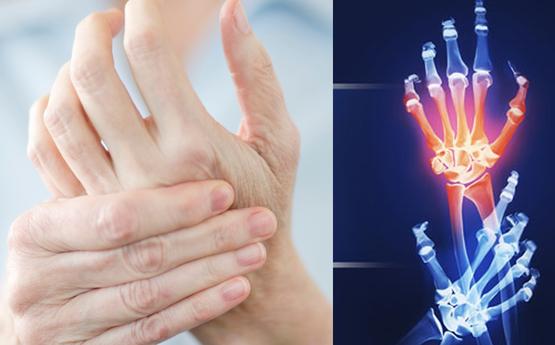 Ի՞նչ առողջական խնդիրների նշան է, երբ թմրում են ձեռքերը