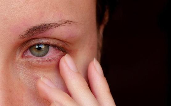 Ի՞նչ նշան է, երբ աչքերը արցունքոտվում է կամ արյուն է լցվում