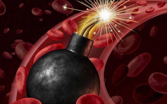 Ինչպե՞ս բնական ճանապարհով նվազեցնել խոլեստերինի մակարդակը արյան միջից