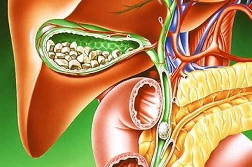 Правильное питание, которые помогут при лечении желчнокаменной болезни