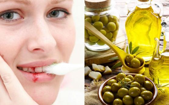 Լնդերի արյունահոսությունը կարող եք ազատվել պարզ միջոցի օգնությամբ, որը նաև կազատի բերանի տհաճ հոտից