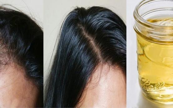 Մազաթափության դեմ ամենալավ միջոցը․ Շատպեք տեղեկացնել այն բոլորին․ Օր օրի մազերը վերականգնվում են