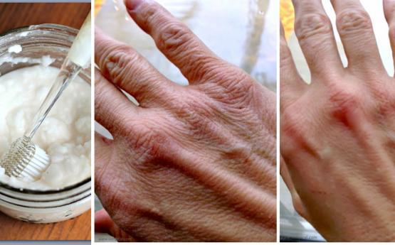 Հատուկ ձեռքերի դիմակ, որը կերիտասարդացնի և նուրբ կդարձնի ձեռքի մաշկը