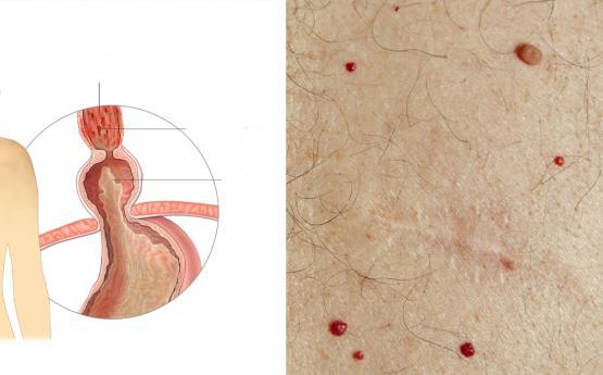 Եթե ձեր մարմնի վրա կան կարմիր խալեր, ուրեմն զգուշացեք, այս 3 հիվանդություններն ունեք