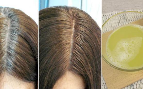 Քսեք սա գլխին և նոր մազարմատներ կաճեն ու մազաթափությունը միանգամից կդադարի