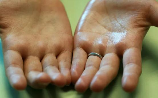 Ի՞նչ հիվանդության նշան է, երբ ձեռքերը քրտնում են