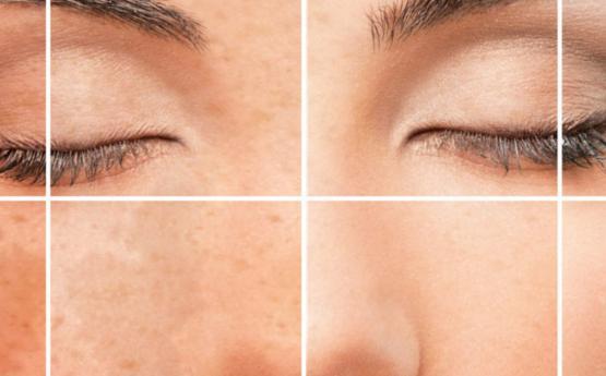 Հաշված ժամերի ընթացքում հնարավոր է ազատվել դեմքի բշտիկներից և պիգմենտներից