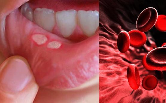 Եթե բերանի մեջ վերքեր են առաջանում, ուրեմն այդ ամենին կհաջորդի հետևյալ հիվանդությունը