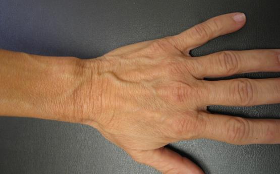 Եթե ձեռքերի վրա նկատում եք տեսանելի երակներ, շտապ դիմեք բժշկի․ Ահա թե ինչու՞