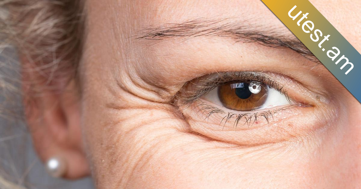 Այս միջոցը ինձ մի 68 ամյա կին է ասել, որը կնճիռներ չունի, այն վերացնում է դեմքի բոլոր կնճիռները և երիտասարդացնում մաշկը