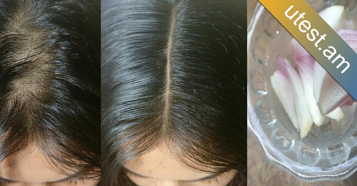 Սոխով այդ դիմակի շնորհիվ մազերը չեն թափվի, կանճեն շատ արագ և կլինեն փայլուն ու շքեղ