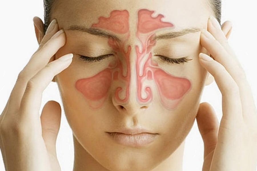 5 признаков синусовой инфекции (и как от нее избавиться)