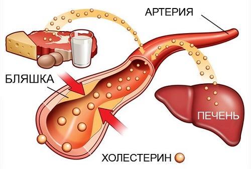 Питание для здоровья ваших артерий