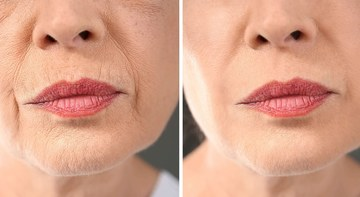 68-ամյա կնոջ գաղտնիքը․ Բնական միջոց, որը վերացնում է կնճիռները և երտասարդացնում մաշկը